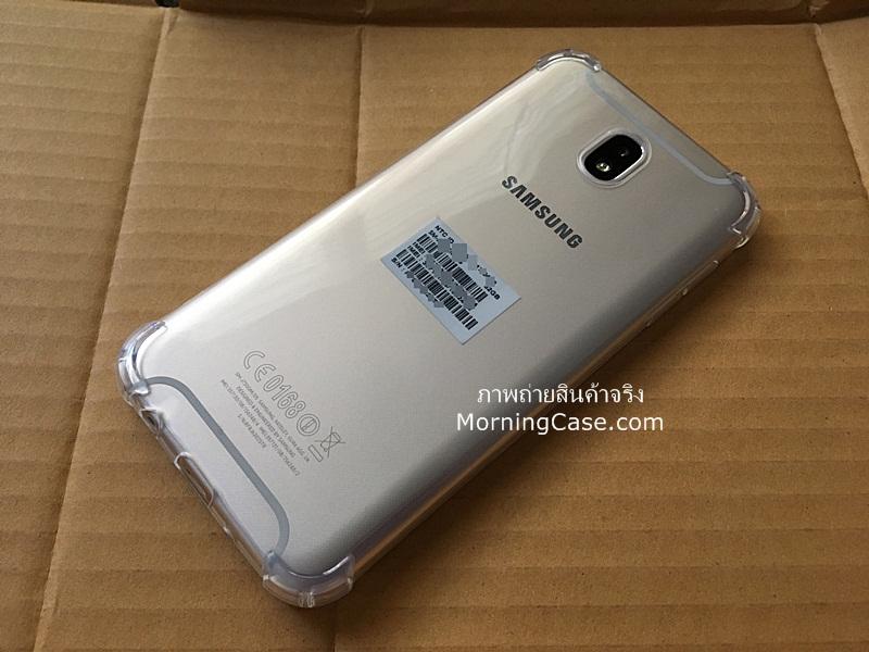เคสใส Galaxy J7 Pro ถูกและดี ปกติ 150 บาท เราขายเพียง 80 บาทเท่านั้น!