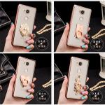 เคส Huawei Mate 8 ซิลิโคน TPU ขอบทอง / โรสโกลด์ สวยงามมากๆ หรูหราสุดๆ ราคาถูก