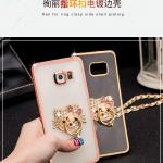 เคส Samsung Galaxy Note 5 ซิลิโคน TPU ขอบทอง / โรสโกลด์ สวยงามมากๆ หรูหราสุดๆ ราคาถูก